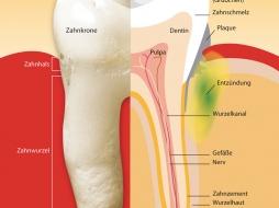 Parodontitis / Parodontose Behandlung in Fürth durch Zahnarzt Aalai